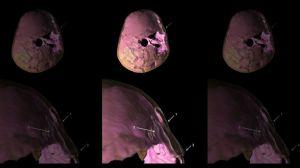 skull-fracture